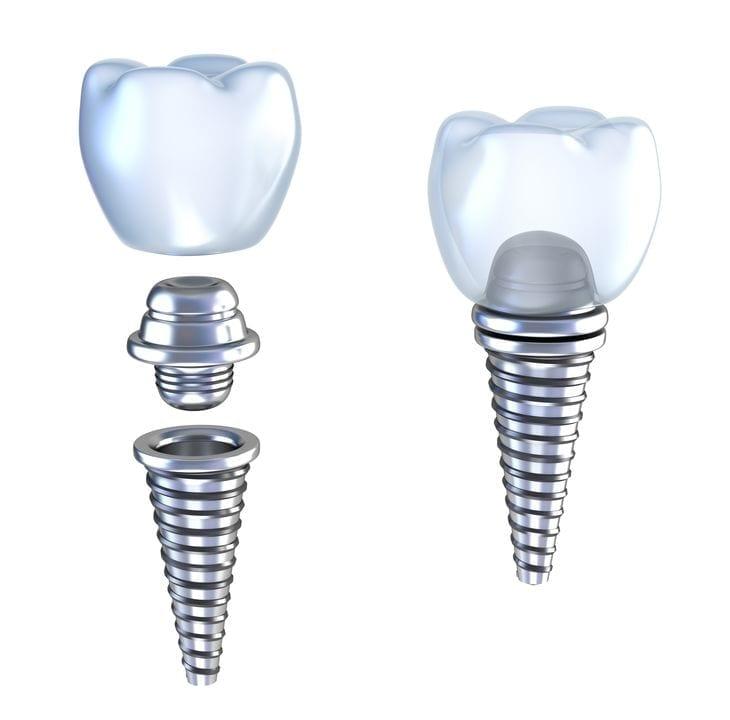 Zahnimplantate Ungarn Moritz Dental Zentrum