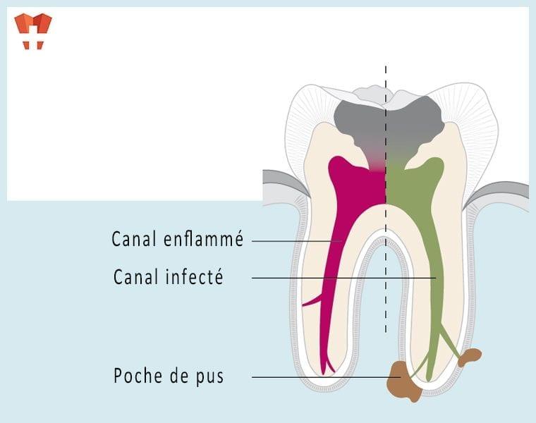 Wurzelkanalbehandlung bei Moritz Dental Zentrum
