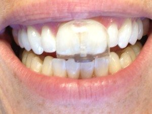 Bruxismus führt zur Abnuztung der Zähne