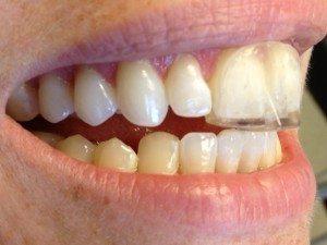 Die Lösung für Zähneknirschen oder Buxismus
