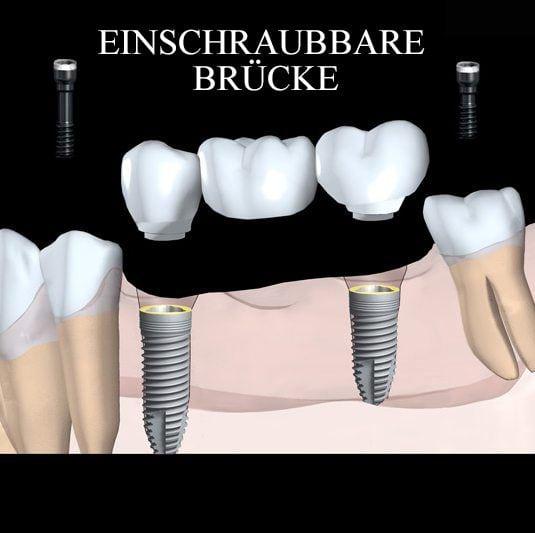 Zahnmedizinische Krone
