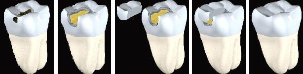 Inlay und Onlay Einlagefüllungen bei Moritz Dental Zentrum