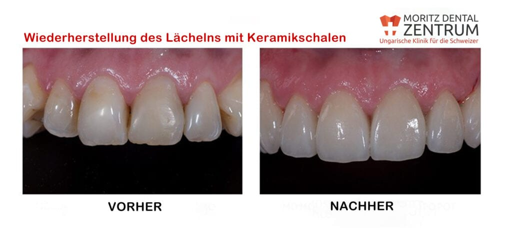 Keramikschalen fur ästhetische Lächeln bei Moritz Dental Zentrum