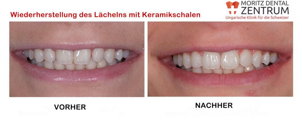 Keramikschalen bei Moritz Dental Zentrum