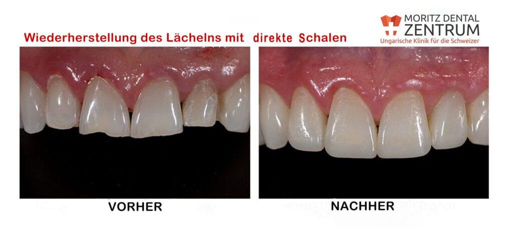 Wiederherstellung des Lächelns mit direkte Schalen bei Moritz Dental Zentrum